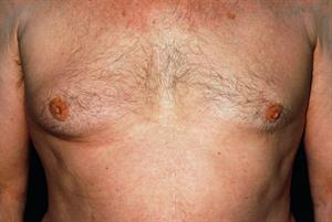 Male breast cancer case study