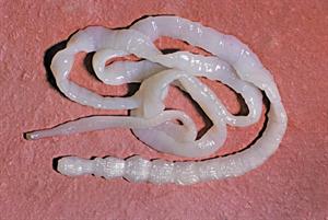 Tapeworm infestation in a returned traveller