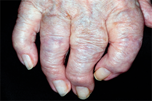 Osteoarthritis in primary care: early diagnosis and management