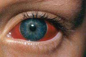Pictorial case study - Red eye with unaffected vision