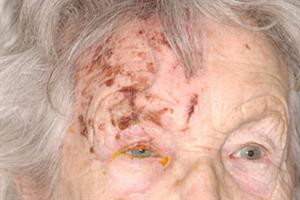 Shingles vaccination programme could be launched in 2013