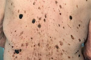 Journals watch: Cryotherapy versus curettage, IBD and Gout