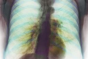 Clinical review - COPD