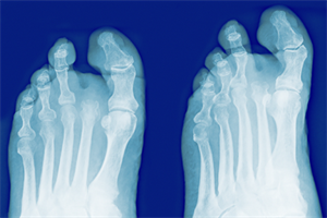 Consultant warns NICE diabetic foot care quality standard statement 'flawed'