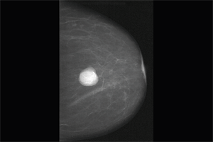 Clinical Review: Benign breast disease