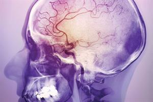 Developing stroke services
