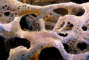 GPs back wider osteoporosis screening in primary care