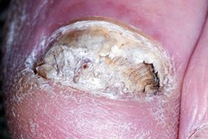 Differential diagnoses - Conditions affecting the nails