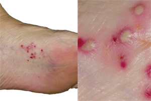 Differential diagnoses: Skin conditions of the feet