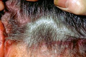 Diagnosing scalp conditions
