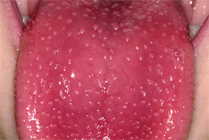 Differential diagnoses - Conditions affecting the tongue