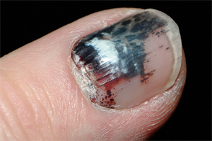 Differential diagnoses: Painful nails