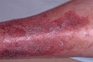 Lower leg eczema: differential diagnosis
