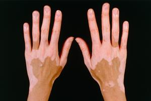 Management of patients with vitiligo
