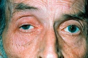 Red flag symptoms: Diplopia