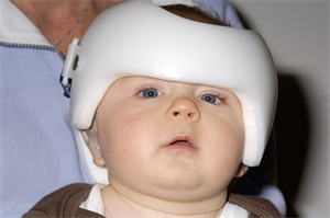 Journals watch: Helmets for baby skull deformities | Undescended testis | Mood stabilisers