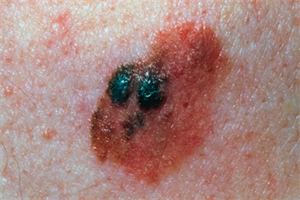 Pictorial case study - Concern about changes to a mole