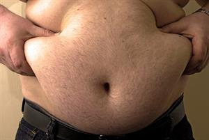 Obesity map reveals soaring BMI in parts of England