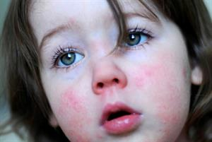 GPs put on scarlet fever alert as cases hit record levels for third year