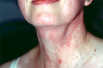 Differential diagnoses - Neck swellings