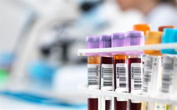 Spironolactone hyperkalaemia warning over co-administration