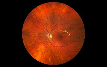 NICE recommends two treatments for diabetic macular oedema
