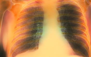 Formoterol/ beclometasone extrafine inhaler now an option for COPD