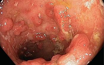 New biologic option for Crohn's disease