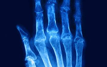New rheumatoid arthritis treatment approved for NHS use