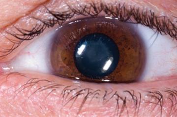 Blurred vision - Red flag symptoms