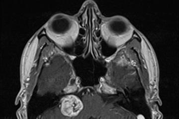 Clinical review: Acoustic neuroma