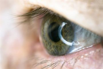 CKS Clinical solutions - Dry eye syndrome