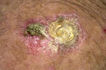 Differential diagnoses: Keratinous conditions