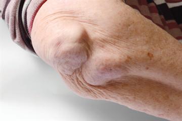 Timely diagnosis of rheumatoid arthritis