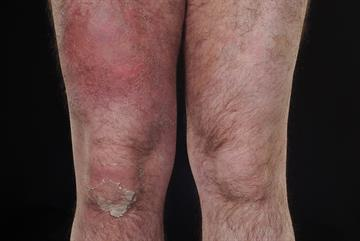 Cellulitis: clinical review