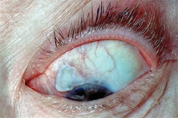 Differential diagnoses: Eye problems