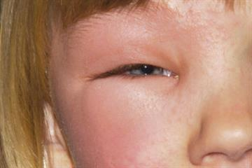 Clinical images: Paediatric presentations