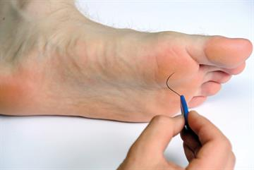 Foot problems in diabetes
