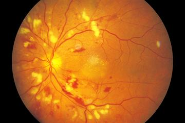 Clinical picture: Hypertensive retinopathy