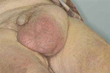 Differential diagnoses: Scrotal lesions
