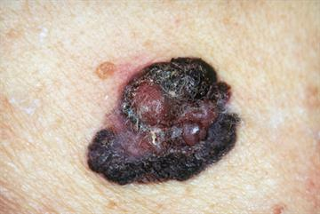 Developments in melanoma treatment