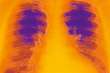 Clinical Review: Heart failure