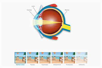 Understanding how eye conditions affect patients' sight