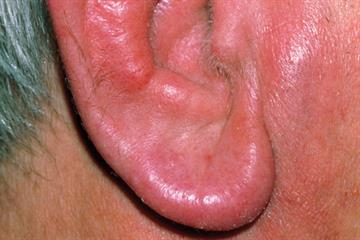 Case study: Relapsing polychondritis