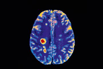 Clinical review of multiple sclerosis: diagnosis and management