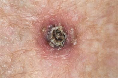 Dome-shaped nodule with central crater and keratin plug (Photograph: Dr P Marazzi/SPL)