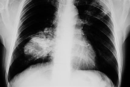 Frontal chest X-ray of the lungs of an 83-year-old patient with small cell lung cancer (Photograph: SPL)