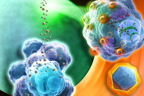 Treatment development: NanoXray particles in cancer cells (Credit: Nanobiotix)