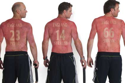 Raising awareness of sun damage: England cricketers