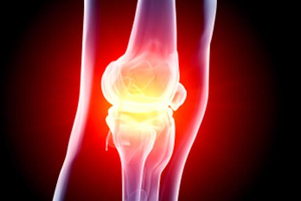 Arthritis Research UK: aims to raise the profile of arthritis and other musculoskeletal conditions in Parliament